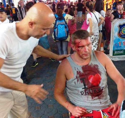 55 year old Polish man was injured during an altercation with two Security Guards
