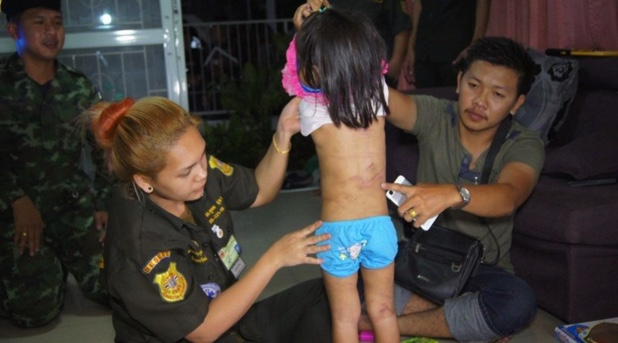 A medical team examines the bruising on the body of the four-year-girl rescued from her townhouse in Pathum Thani after being left untended for three days.